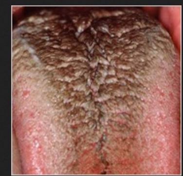 Chewing tobacco hairy tongue Likely... The